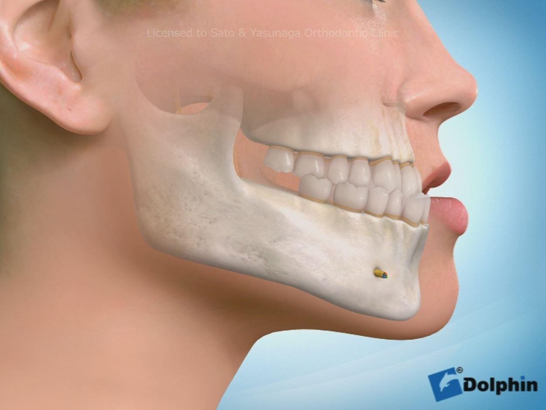 外科的な矯正治療とは